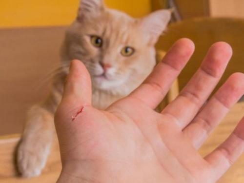 Bệnh mèo cào có thể nguy hiểm đến tính mạng